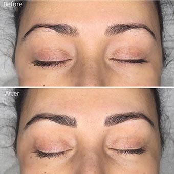 Before and After Designer Brows by KateB